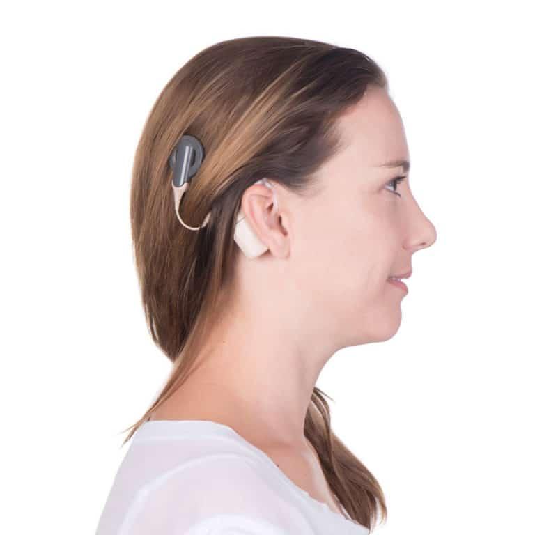 Como el Implante Coclear Restaura la Audición